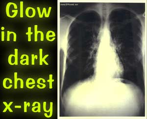 Glow-in-the-dark chest x-ray